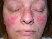 Proven Treatment Option for Acne and Rosacea Treatment in Wollongong